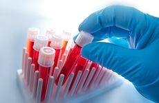 Liquid Biopsy Space Eyed by Precision for Medicine With Recent Acquisition